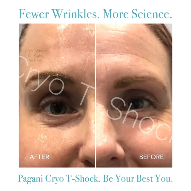 Cryo T-Shock Before & After   White Mountain Cryotherapy